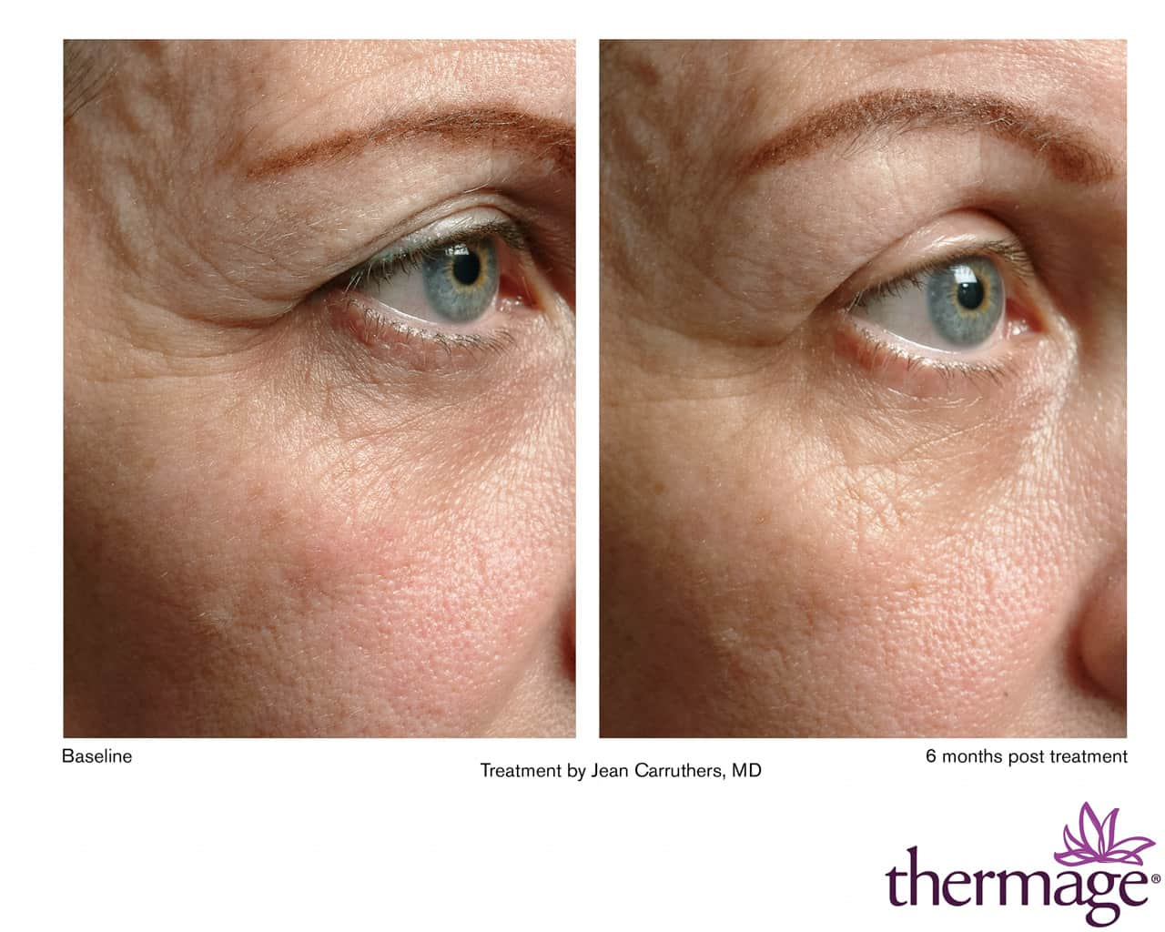 Thermage before after pictures Eyelid lift surgery (blepharoplasty) Before and After