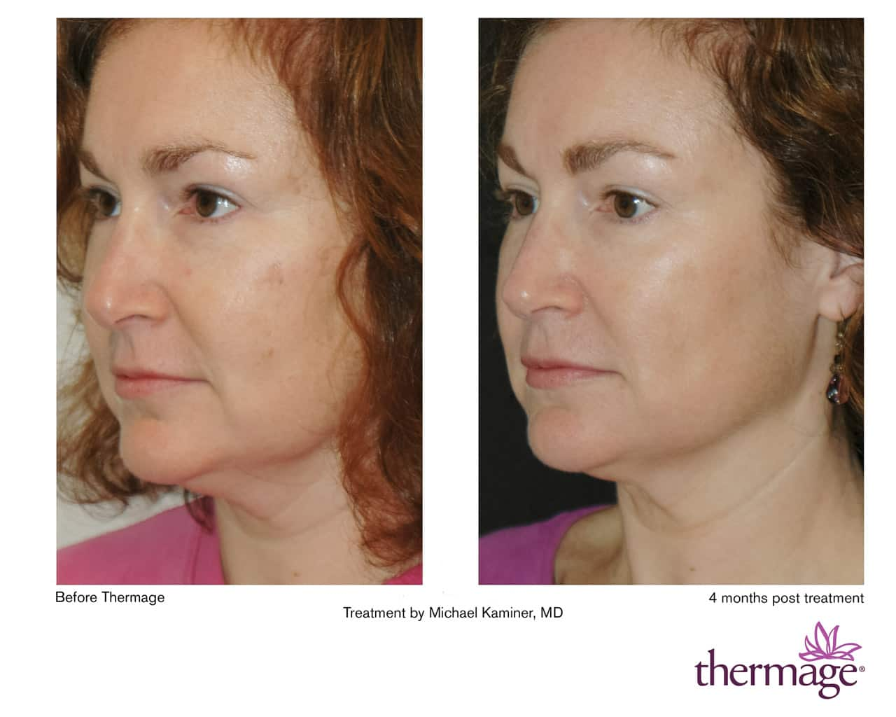 Thermage before after pictures Cached