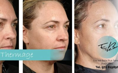 Thermage: skin rejuvenation